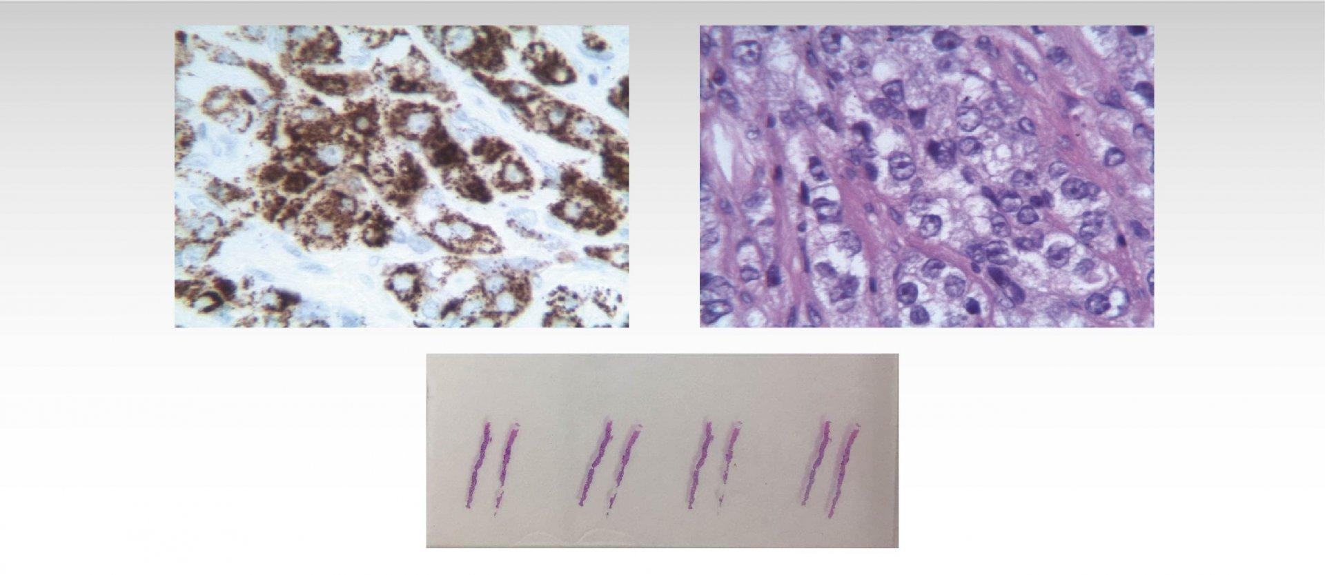 adenocarcinoma prostatico gleason 10 4