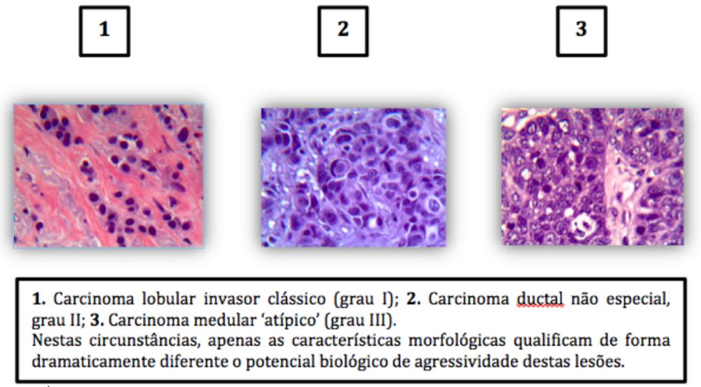 cancer mamar luminal b)